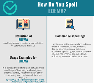 Correct spelling for edema