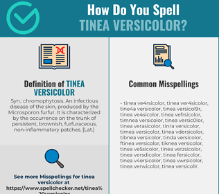 Correct spelling for Tinea Versicolor
